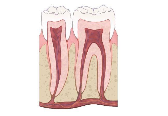 Imagen de la anatomia interna del diente hr-dental
