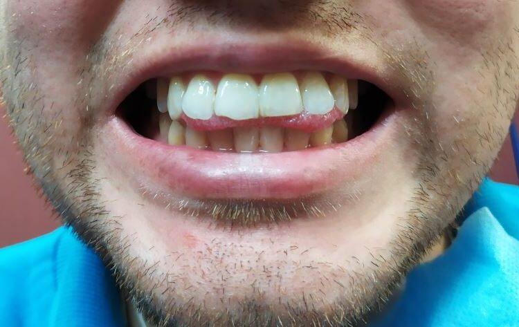 paciente con habito de lengua