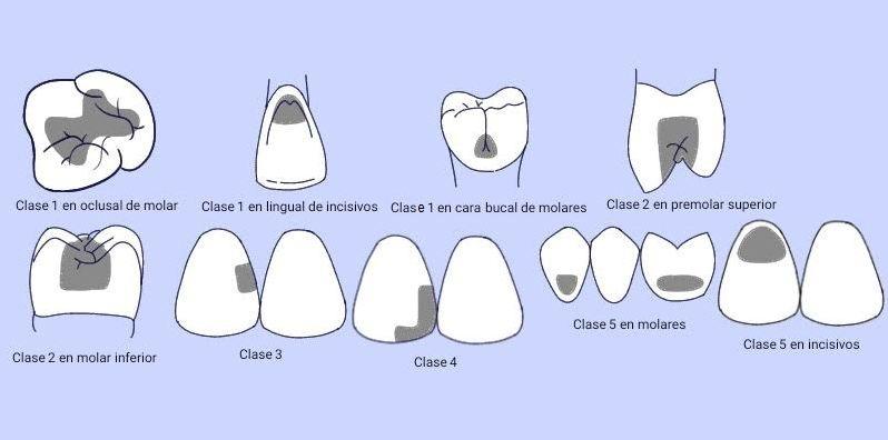 clasificacion de cavidades dentales de gv black