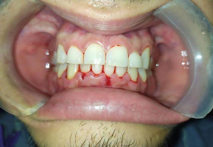 Paciente con gingivitis, enfermedad de las encias, encias sangrantes