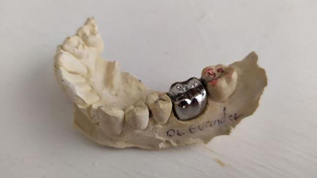 corona dental de metal en su modelo de yeso