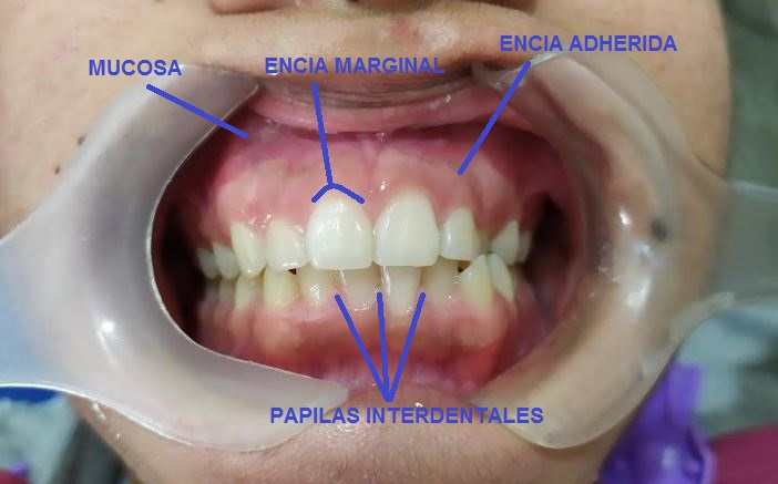 Imagen señalando los tipos de encia, marginal, adherida y papila interdental