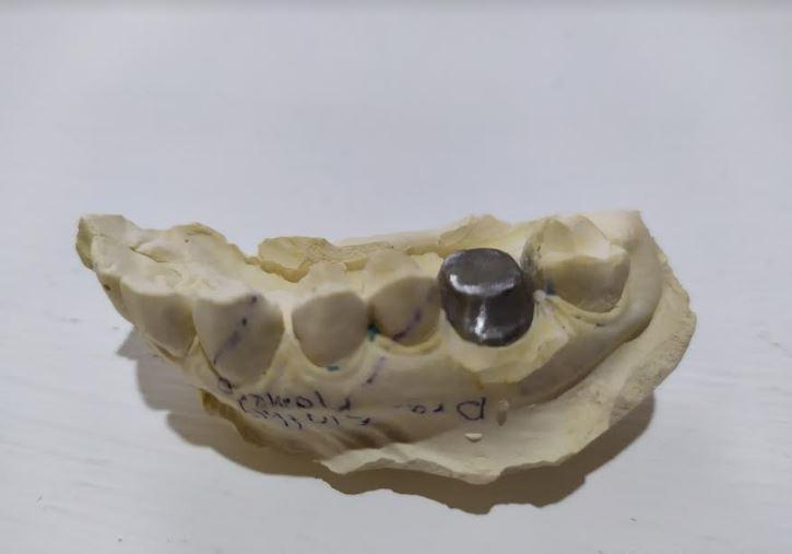 imagen de una cofia dental metálica en su modelo de yeso