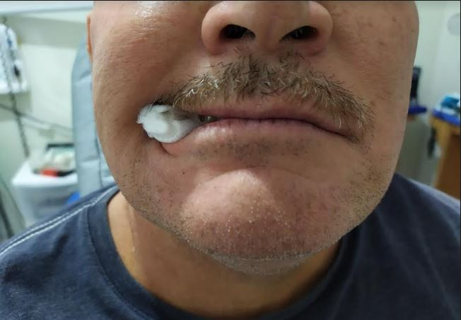 imagen de un paciente mordiento una gasa despues de una extraccion dental, recomendaciones